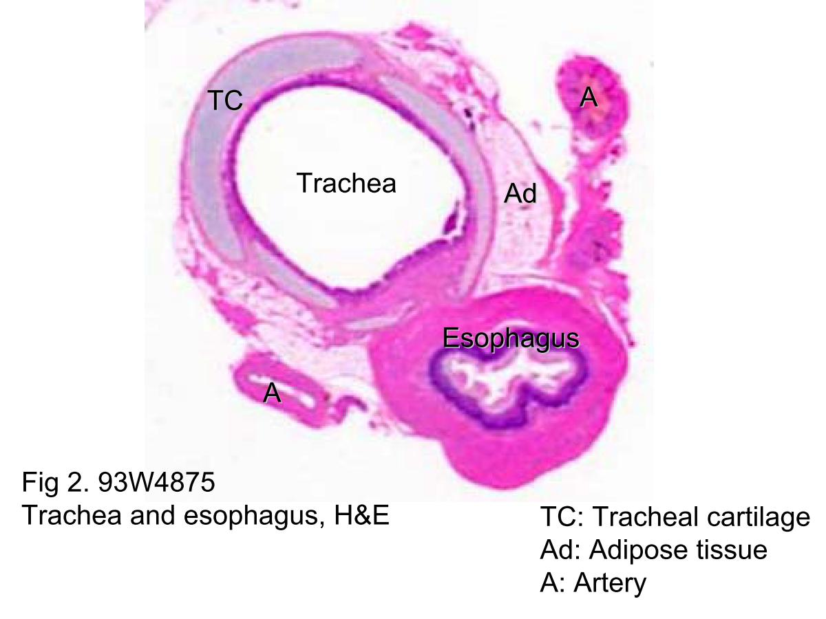 Block1fig 2 93w4875 Trachea And Esophagus He