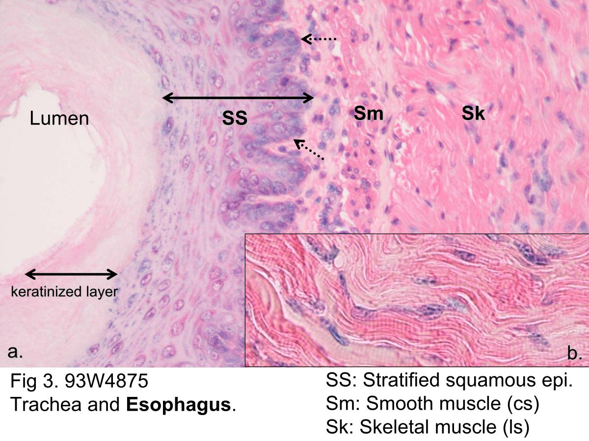 microscopic structure of skeletal muscle