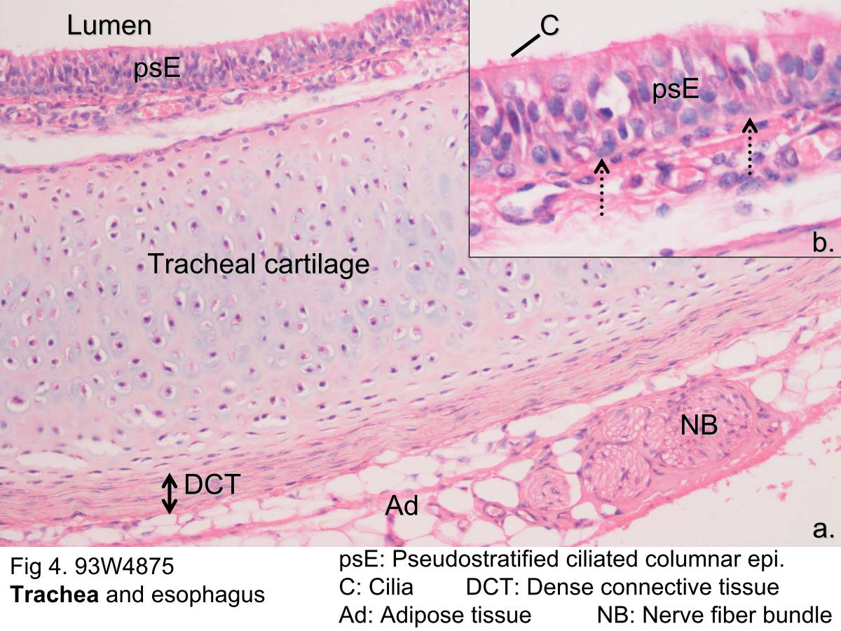 Block1/Fig 4. The microscopic structure of trachea.