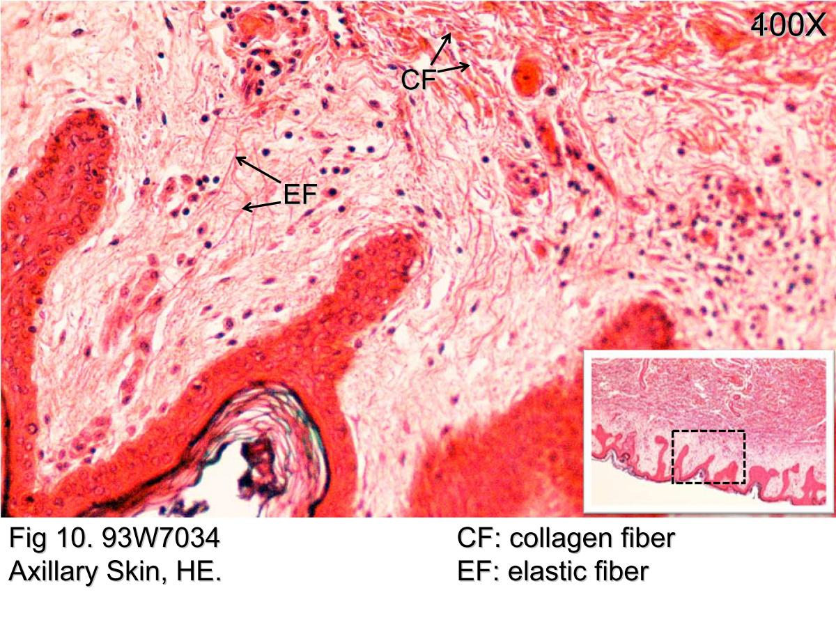 Block1/Fig 10. Dermis of thick skin