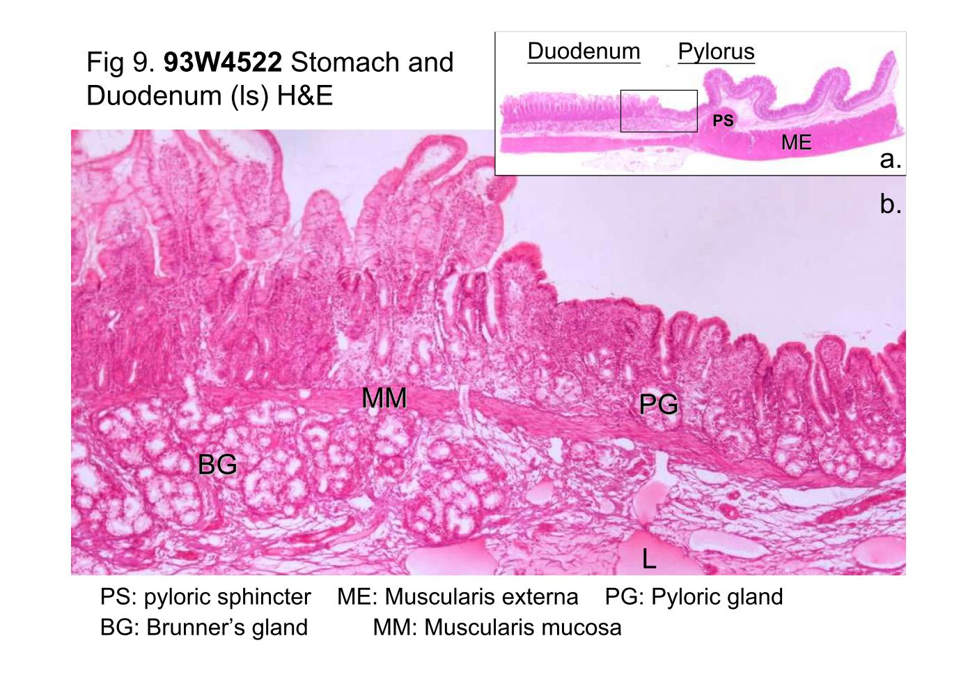 Block10 1fig 9 93w4522 Stomach And Duodenum Ls He