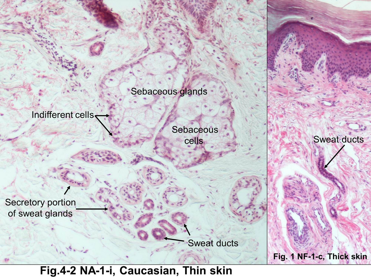 No. 11. Holocrine secretion (sebaceous gland, hairy skin, HE) on X1 ...