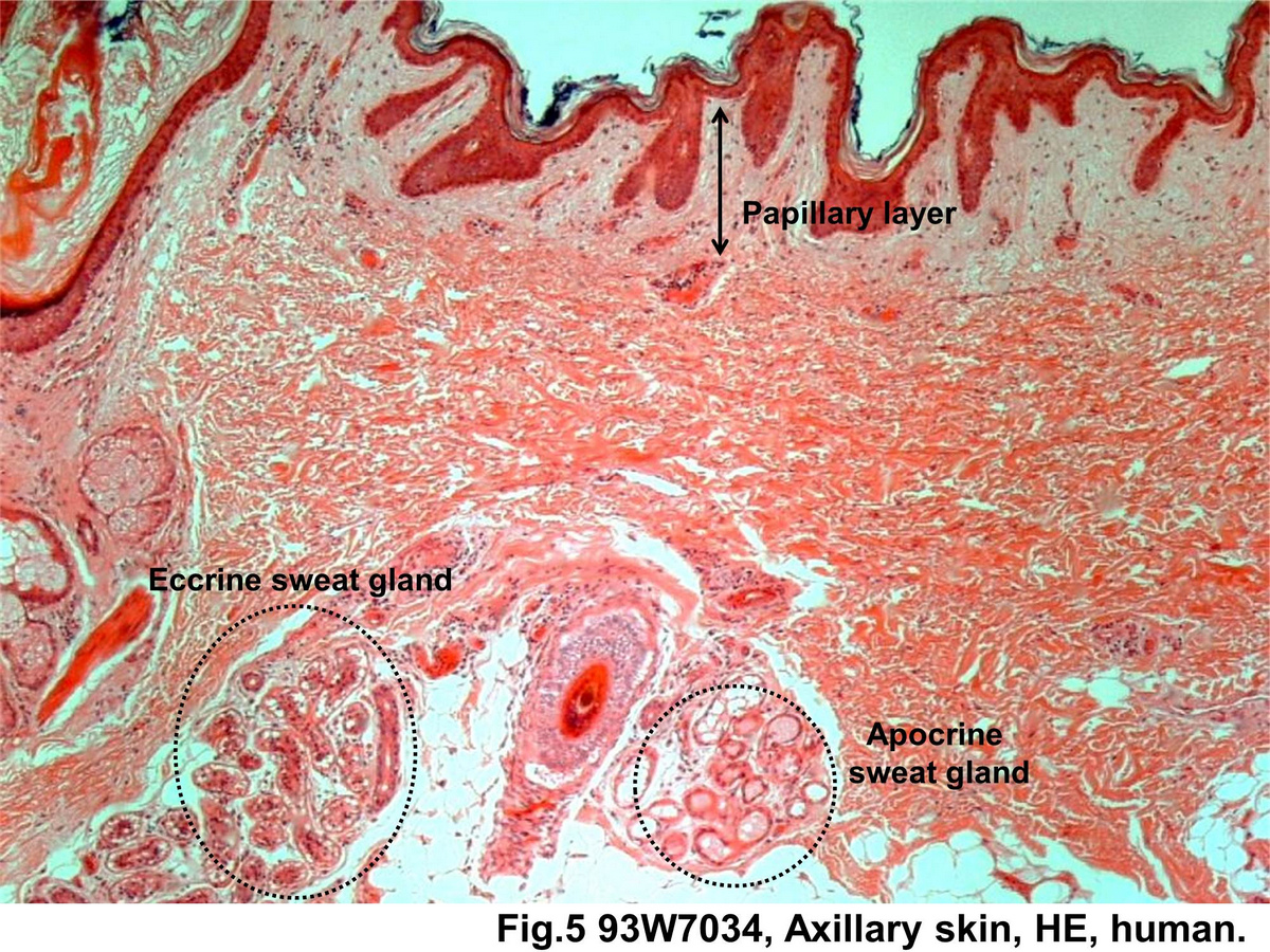 Block12fig 5 Eccrine And Apocrine Sweat Gland