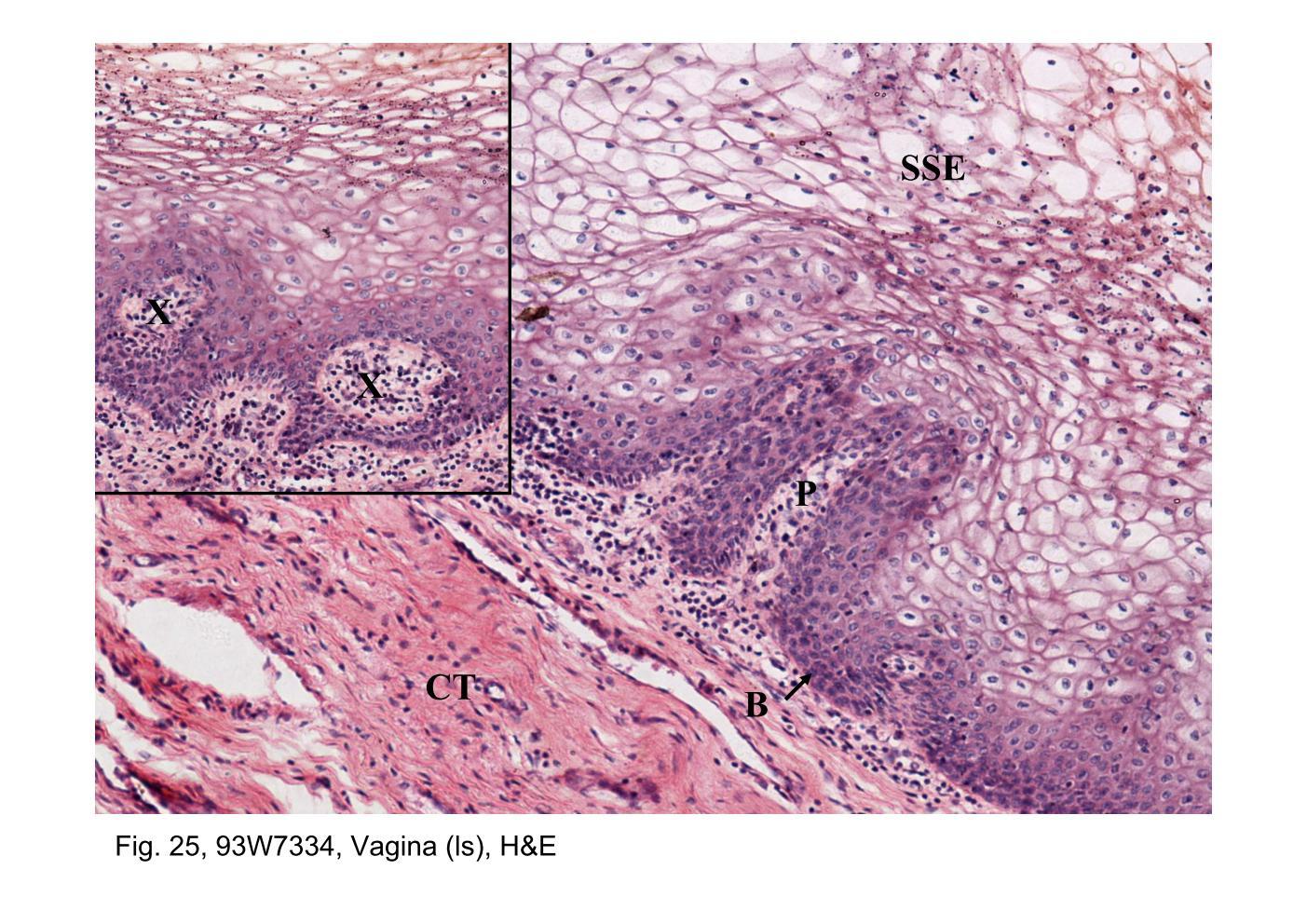 Tissue from vagina