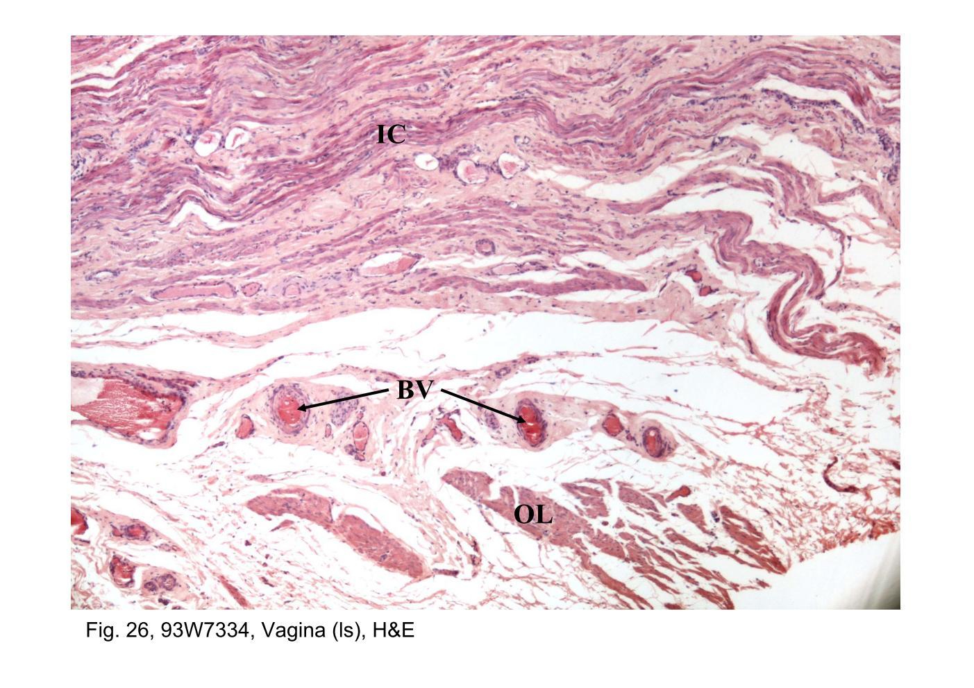 Vaginal wall anatomy