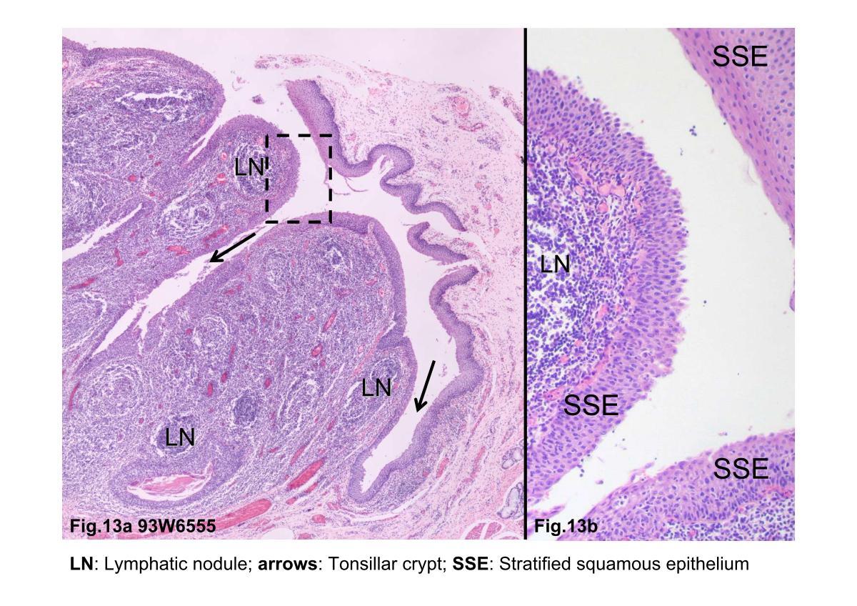 Block2/Fig.13a 93W6555 Palatine tonsil, H&E.