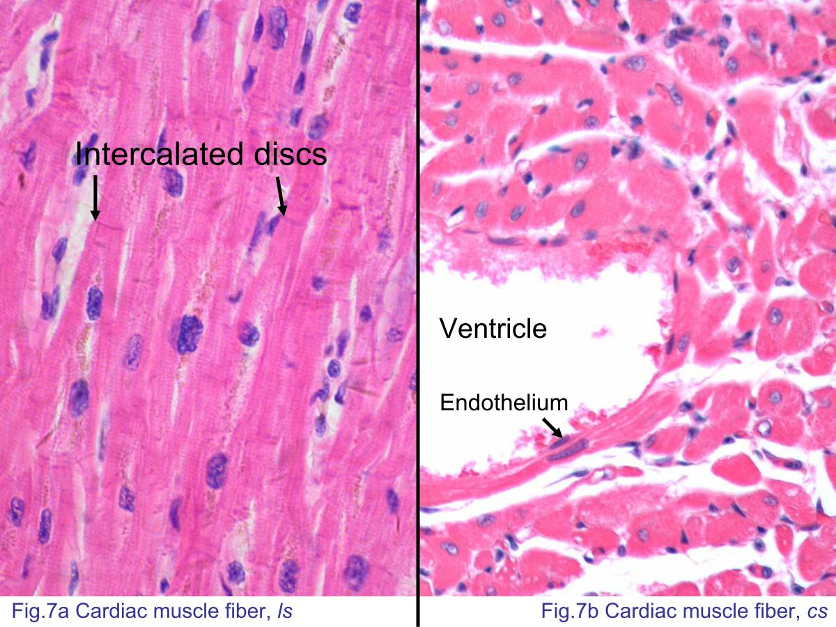 branched cardiac muscle fiber - photo #42