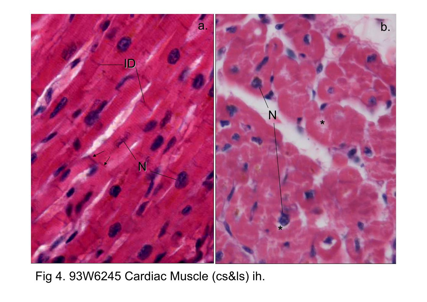 branched cardiac muscle fiber - photo #16
