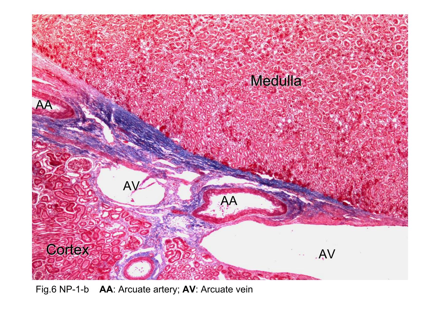 Block8fig6 The Photomicrograph Of Renal Cortex And Medulla